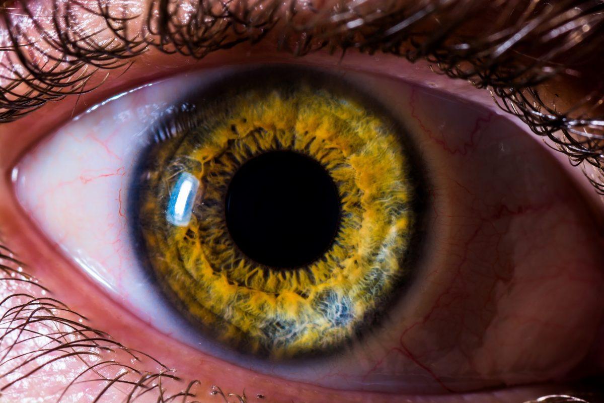 iridologie et naturopathie decouverte metier naturopathe iridologue